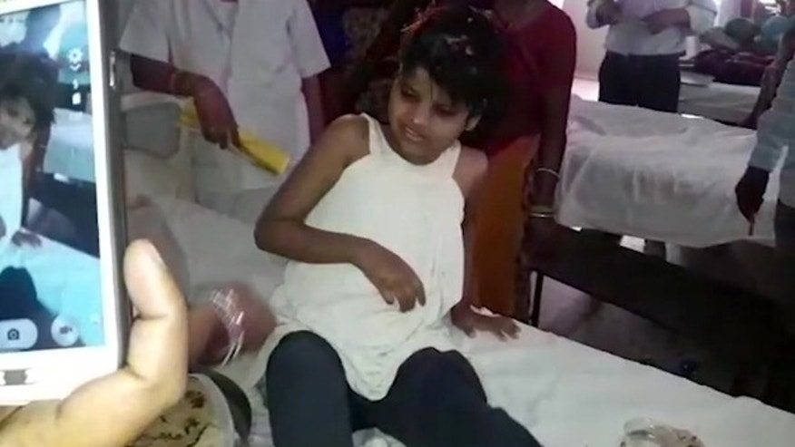A young Indian girl sits on a bed in a hospital in this image taken from video in Bahraich northern India Thursday April 6, 2017.
