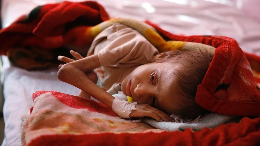 FILE -- In this Jan. 24, 2016 file photo, a malnourished child lies in a bed waiting to receive treatment at a therapeutic feeding center in a hospital in Sanaa, Yemen. The U.N. secretary-general and high-ranking government officials from dozens of countries are meeting Tuesday, April 25, 2017, in Geneva to drum up funds for war-torn Yemen. The impoverished Mideast country on the tip of the Arabian Peninsula is considered the world's greatest humanitarian crisis. (AP Photo/Hani Mohammed, File)