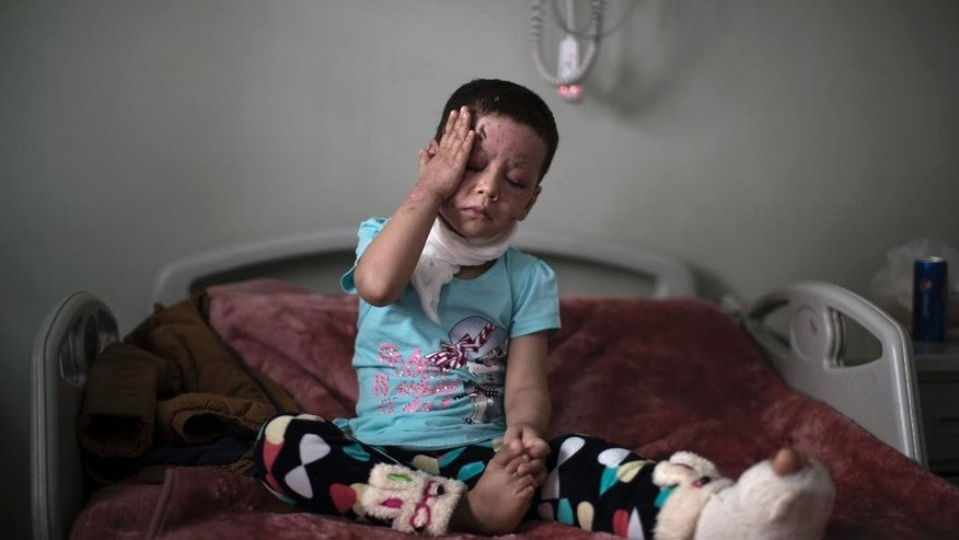 FILE - Hawra Alaa Hassan, 4-years–old, who was badly burned in a U.S. airstrike in Mosul, sits on her bed at a hospital in Irbil, Iraq, in this file photo from Saturday, April 8, 2017. Accounts from survivors and witnesses cast doubt on U.S. suggestions that the Islamic State group was to blame for the high civilian death toll in the March 17 strike, which leveled a house where more than 100 people were taking refuge, killing almost all, in the deadliest single incident in the months-long campaign to retake Mosul.  (AP Photo/Felipe Dana, File)