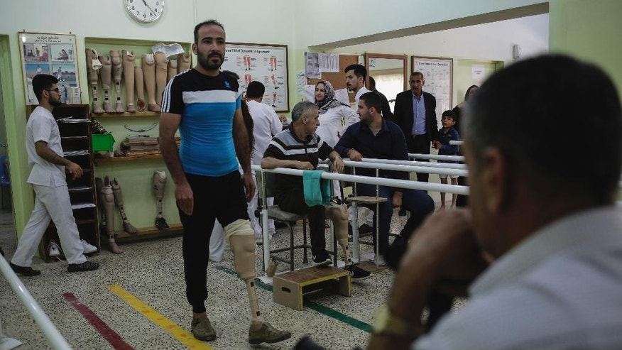 In this Wednesday, May 10, 2017 photo, Mohammed Kahlan Ali practices walking on his prosthetic leg in the ICRC prosthetics clinic in Irbil. The fight to retake Mosul has left more than 12,000 civilians injured and for many that has meant the loss of a limb.  (AP Photo/Bram Janssen)