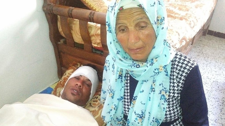 In this photo dated Friday, May 12, 2017, Adel Dridi poses with his mother, Dalila Dridi, while recovering from his burns at his parents' house in Tebourba, near the Tunisian capital, Tunis. Adel Dridi's head is covered in burns, his voice subdued, as he describes setting himself on fire after police barred him from selling strawberries on the side of a Tunisian road. The desperate act by the main breadwinner for a family of six has become the latest symbol of struggling Tunisians' anger at corruption and joblessness. (AP Photo/Mehdi El Arem)