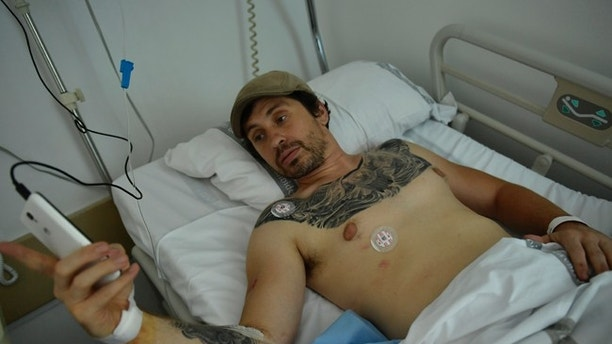 Bill Hillmann, 35-year-old American from Chicago lies in a hospital bed after being gored at the San Fermin bull running Festival, in Pamplona, northern Spain, Saturday, July 8, 2017. Hillmann was in stable condition after televised images showed a bull thrusting its horn into a man's buttocks before flipping him into the street. Two Americans were gored and several other people were injured Saturday during the second running of the bulls at this year's San Fermin festival in the northern Spanish city of Pamplona, officials said.(AP Photo/Alvaro Barrientos)
