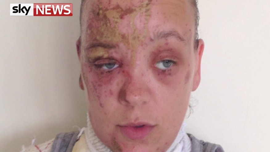 Tara Quigley said she still has nightmares of the acid attack.