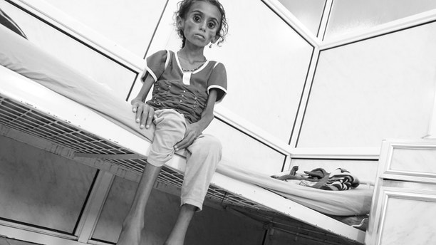 Hodeida, Yemen (30 April 2017). Jamila Ali Abdu Qasem, 7-year-old girl sick with malnutrition and intestinal worms photographed here two days before she died at the Al Thawra Public Hospital in Hodeidah. From the nothern Yemeni province of Hajjah, Jamila's parents were unable to pay for her transportation fees to Sana'a in order to get proper diagnosis and treatment for her condition. Hundreds of children in Yemen die everyday from preventable diseases and conditions. @ICRC/Ralph El Hage