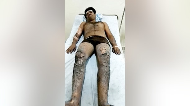 A priest suffered 60 per cent burns after he tripped and fell - while running across hot coals.  See SWNS story SWCOALS.  Vijay Kumar, 35, was performing the ritual at a festival when he lost his footing and fell front-first into the fiery burning pit.  Video shows him tumble, before two fellow priests standing at the end of the red hot runway jump in and pull him to safety.  All three were taken to St. John's Medical College Hospital in Bengaluru, India, where Mr Kumar was treated for 60 per cent burns to his legs.  His rescuers suffered 15 - 20 per cent burns after the accident at Sri Revanasiddeshwara temple in Ramanagara district of Karnataka, India, on April 28.  The path of fiery coals is prepared the day before the festival, by burning wooden logs.  The temple is located atop a hill about 3,000 ft above sea level and is considered sacred by Shaiva followers.