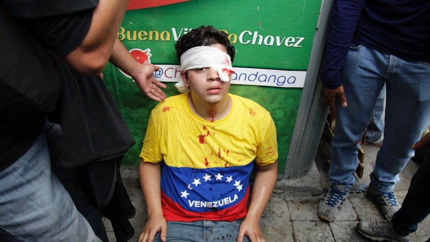 An opposition student protester sits on the ground after he injured his left eye during a march toward the electoral commission in downtown Caracas, Venezuela, Thursday, March 21, 2013. Student protesters marching to protest against what they perceive as bias by Venezuela's electoral council clashed on Thursday with supporters of the late President Hugo Chavez. Police attempted to separate the rival groups, but scuffles broke out, prompting security forces to fire tear gas canisters and shoot plastic bullets at the Chavistas. Venezuela will hold a presidential election on April 14 to replace Chavez. (AP Photo/Ariana Cubillos)