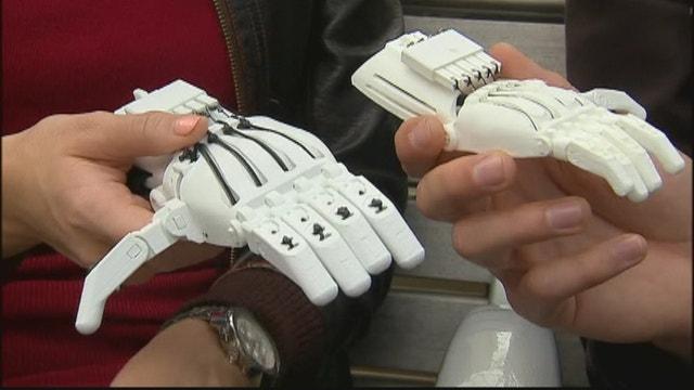 3D prosthetics for kids in need