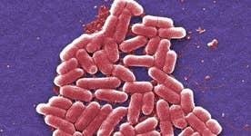 Deadly superbug hits U.S.