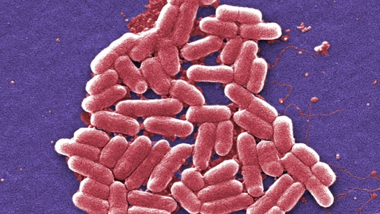 What to know about the antibiotic-resistant superbug