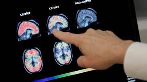 Biogen's Alzheimer's drug can actually help: Dr. Marc Siegel