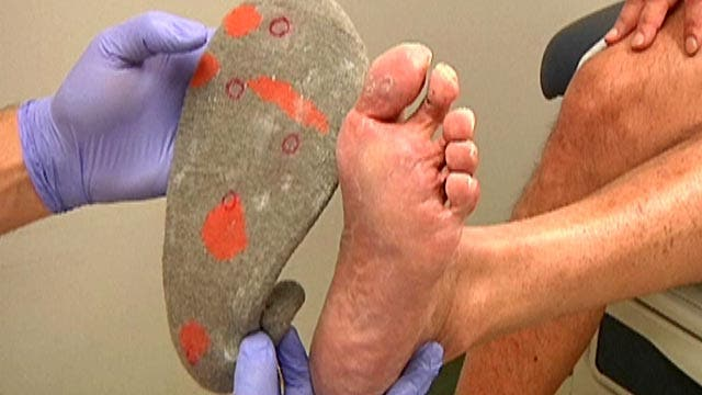 Doctors at the University of Arizona Medical Center are developing a pair of fiber optic socks that can detect problem areas before they lead to amputations