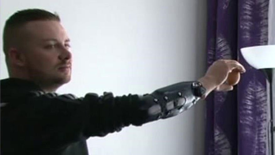Doctors perform world's first bionic hand reconstructions on amputees