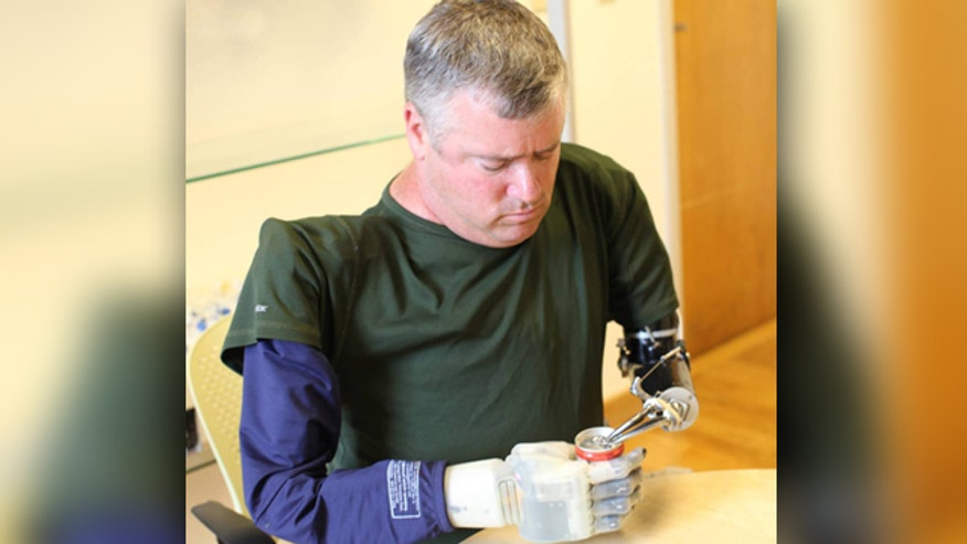 Allison Barrie on the plan by DARPA to build sophisticated artificial limbs for wounded veterans