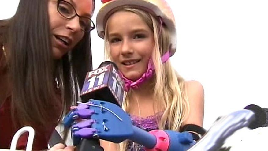 California girl receives prosthetic limb
