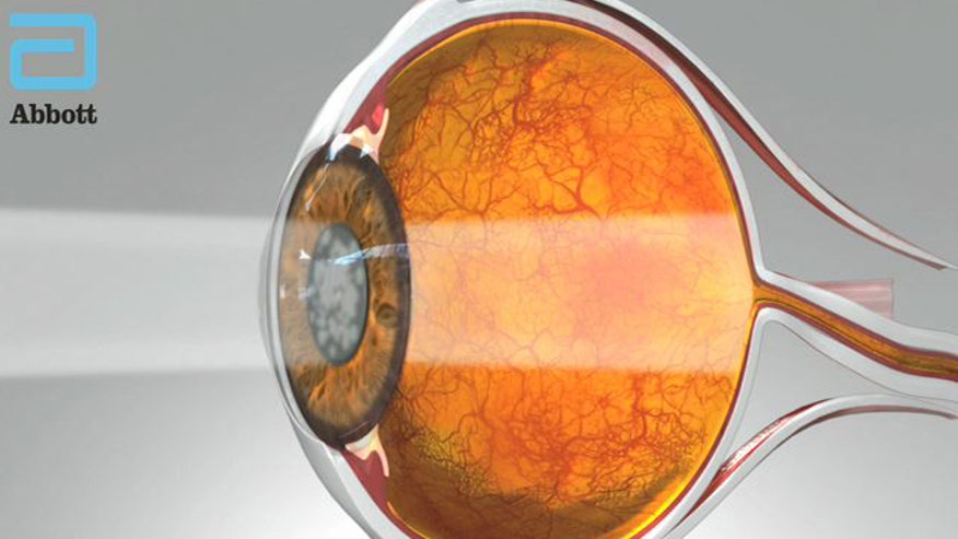 Cataracts will affect all of us at some point.  In surgery doctors remove the diseased lens and replace it with a mono-focal one.  But now surgeons are using a mult-focal lens, which means patients don't need glasses of any kind afterwards