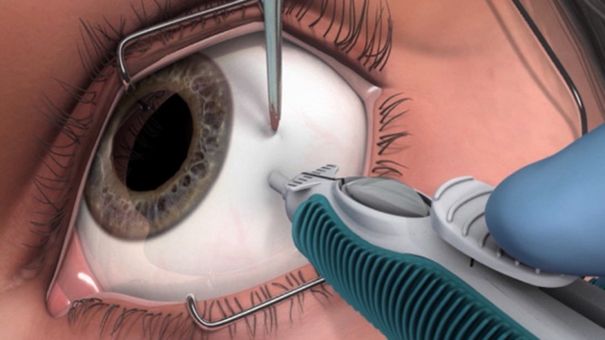 Eye problems are one of the many side effects of diabetes.  Diabetic macular edema can cause vision loss as blood vessels leak.  In the past, the only solution was frequent injections into the eye, but now, there is an implant that is saving patients' vision