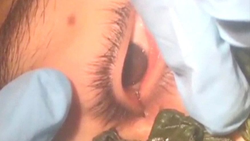 Raw: Peruvian doctors coax botfly larva from patient's eye socket