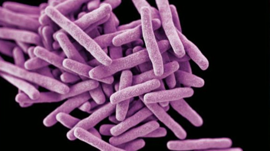 Health officials tracing path of woman with drug-resistant TB