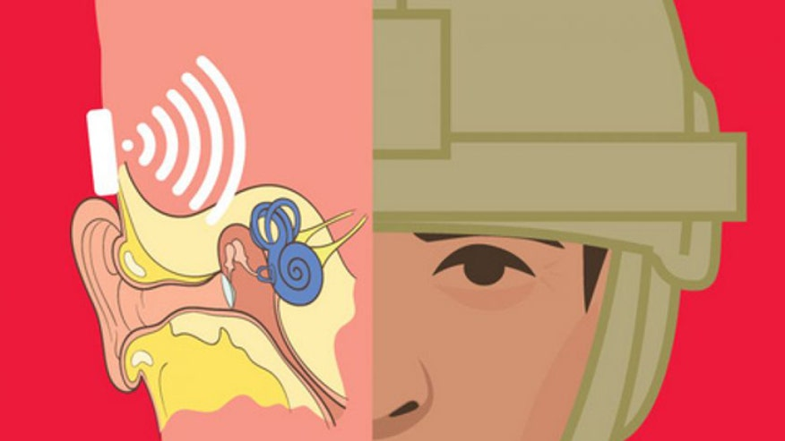 Allison Barrie on the new military radio that will use soldiers' bones to send messages