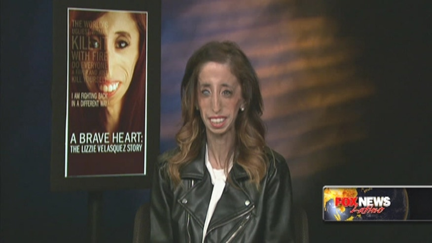 Lizzie Velasquez, once 'world's ugliest woman,' now among the bravest.