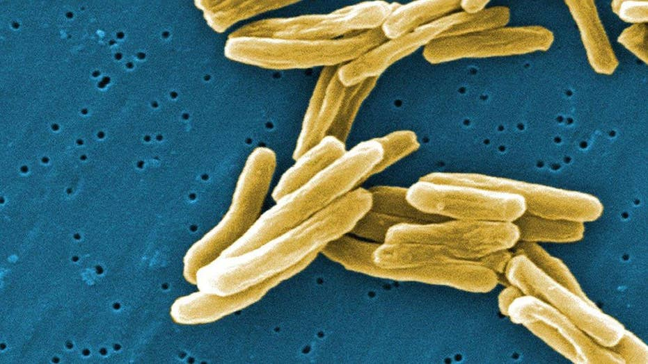 Is tuberculosis making a comeback?