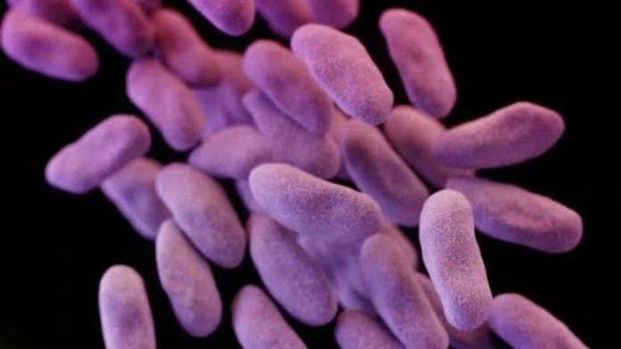 Deadly superbug arrives in US, report says
