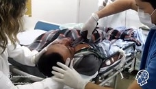 Raw video: Brazilian surgeon removes knife embedded in victim's cheekbone