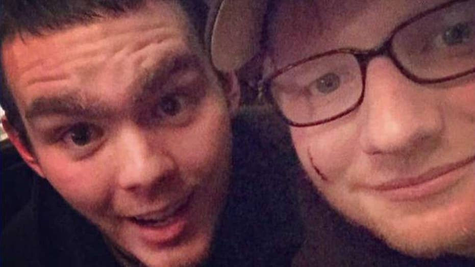 Ed Sheeran's face accidentally slashed by royal's sword?
