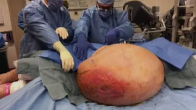 Doctors stunned by 140lb tumor growing inside PA woman