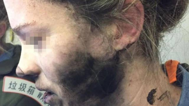 Headphones explode on woman's face during flight
