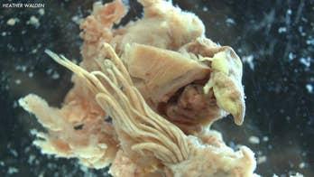 Hawaii confirms rat lungworm disease in Big Island infant