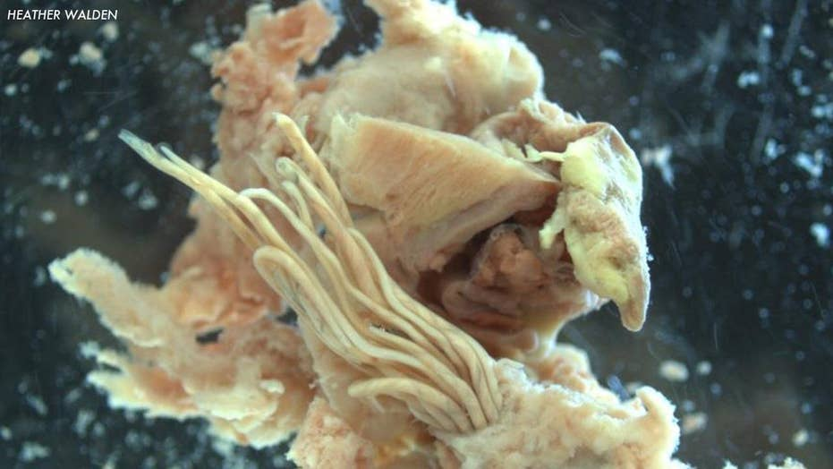 What is rodent lungworm?