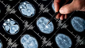 """We've heard advice through the years for ways to keep our brains young by doing crossword puzzles, eating fish and avoiding alcohol. But Dr. Richard Carmona, author of """"30 Days to a Better Brain"""" says some of that brain buzz isn't true at all"""