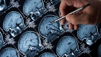 Diabetes drug may reverse Alzheimer's symptoms