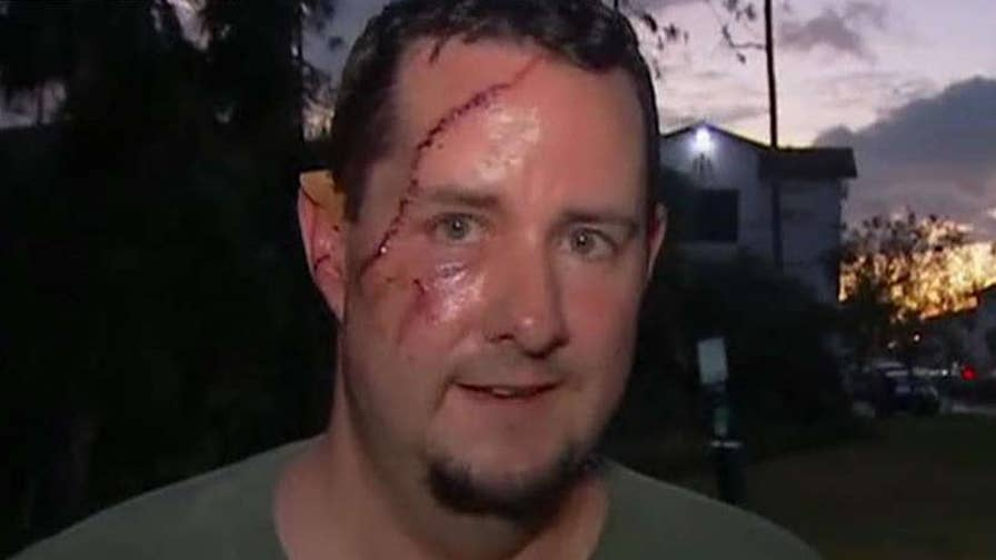 Victim needed 41 stitches to his face after a bear attacked him as he let his dog out in Naples, Florida.