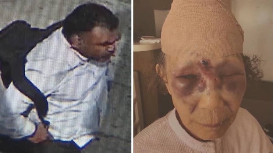 Los Angeles police say elderly woman was punched in face in random attack.
