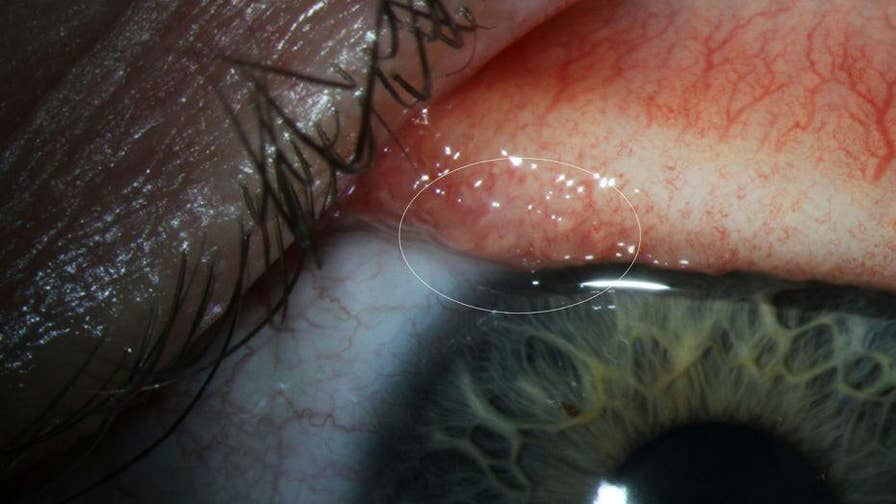 An Oregon woman thought she had an irritated eye because of a stray eyelash or even a piece of fuzz, but she ended up pulling out more than a dozen worms form her left eye.