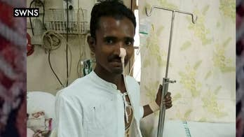 A look at how doctors in India saved a construction worker who was impaled by a 4ft pole on a building site.