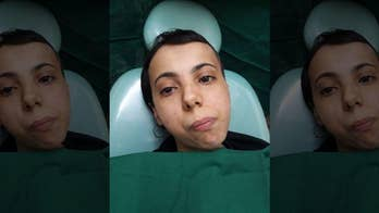 A 30-year-old woman from Yemen had to consume a liquid diet for her entire life because of a tumor that fused her mouth shut. Miraculously, physicians in India were able to perform a four-hour procedure that removed the tumor that was sitting on her jaw joint and now she is finally able to chew and live a normal life.