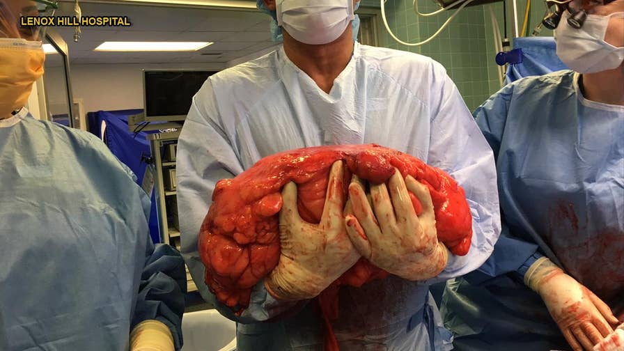 A New Jersey man who thought he had a beer belly actually had a 30-pound cancerous tumor growing in his abdomen. 63-year-old Kevin Daly was diagnosed with liposarcoma, a rare type of cancer that develops in the fat cells of soft tissue.