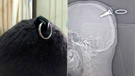 These incredible pictures show doctors treating a man who had a motorcycle key stuck in his skull during a brawl.