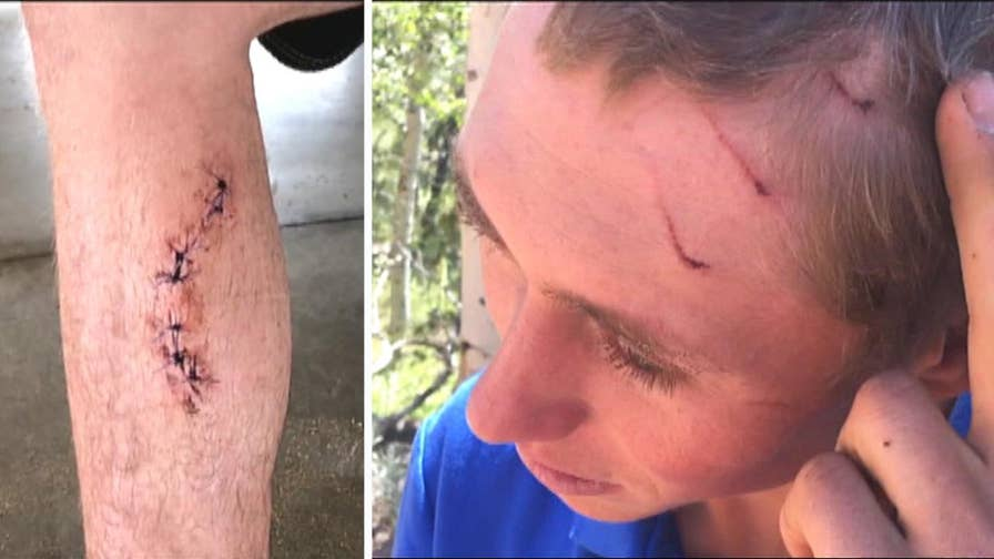 Shark attack in Hawaii earns 20-year-old Dylan McWilliams a dubious distinction. The Colorado man says spends a lot of time outdoors.
