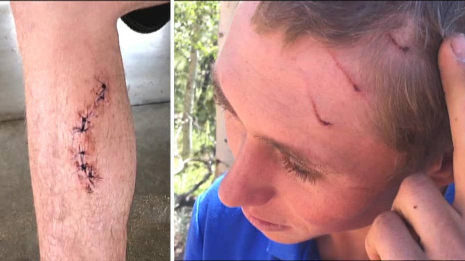 Ouch! Man bitten by shark, bear, snake in less than 4 years