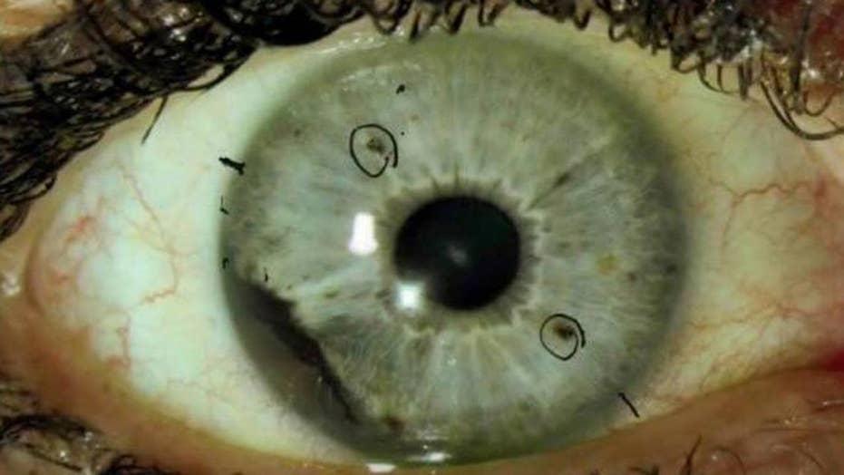 What is ocular melanoma?