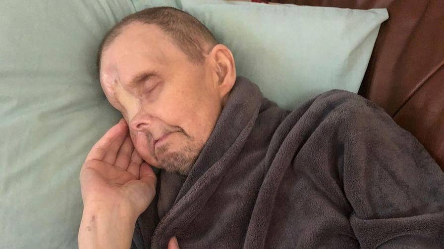 58-year-old Danny Hunt from North London was suffering from migraines before it was discovered he had a severe form of cancer in his eye. Doctors had to remove his right eye along with bone in his nose and jaw to keep him alive.