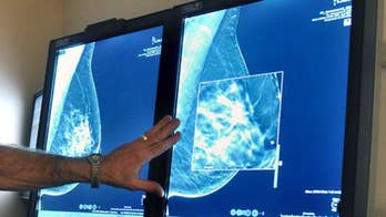Dr. Nicole Saphier breaks down the breakthrough breast cancer study.