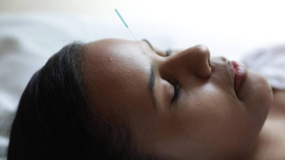 Cancer survivors with insomnia may find relief with acupuncture