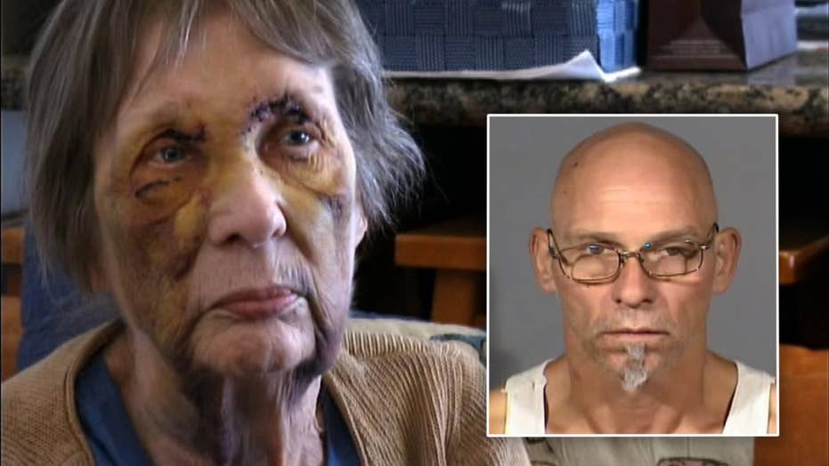 80-year-old woman beaten, shot in face during home invasion