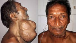 This is the incredible transformation of a farmer who had a 3-pound tumor removed from his throat.