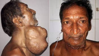 Somai, a 55-year-old farmer from India, thought the growing lump below his jaw was a swollen thyroid gland, but scans revealed it was a 3-pound sub-mandibular tumor that needed to be cut out immediately.